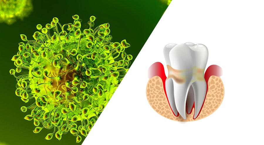 coronavirus-covid-periodoncia